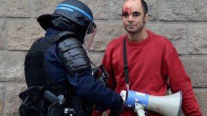Manifestant blessé, violences policières